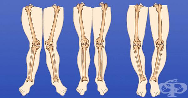 Проблеми с краката при деца, за които родителите не трябва да се притесняват - изображение