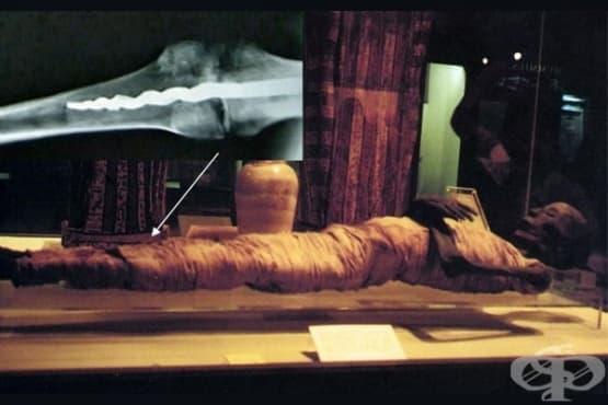 Усермонту - египетската мумия с ортопедичен имплант в крака - изображение