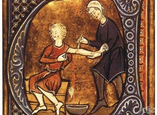 Шестте най-болезнени медицински интервенции през Средновековието - изображение