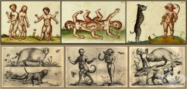 Човешките малформации – необяснимият ужас в акушерството и гинекологията до 18 век, част 1 - изображение