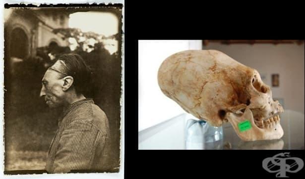 Изкуствената деформация на черепа в хода на историята: къде, как и защо се практикува - изображение