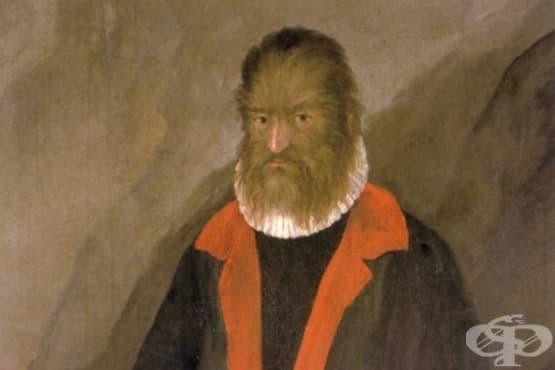 Покритият с козина мъж, който става френски благородник - изображение