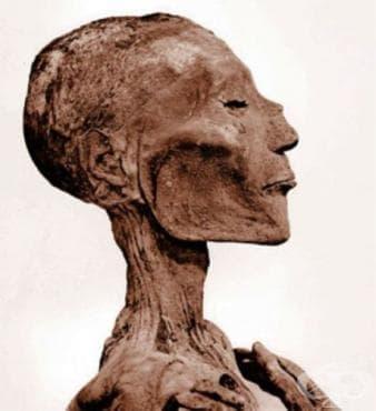 Доказателства за съществуването на вариола в Египет - изображение