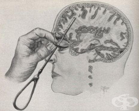 Д-р Егаш Мониш и префронталната лоботомия - изображение