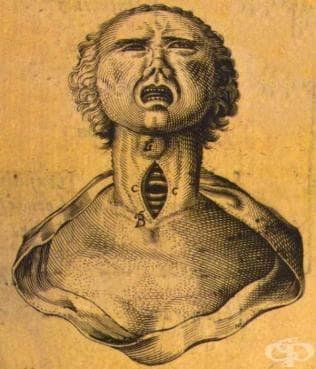 Древни източници, описващи устройството, заболяванията и функциите на ларинкса и фаринкса - изображение