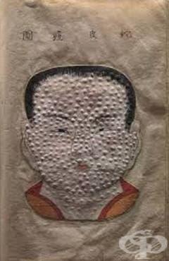 Поява на епидемия от вариола в Древен Китай - изображение