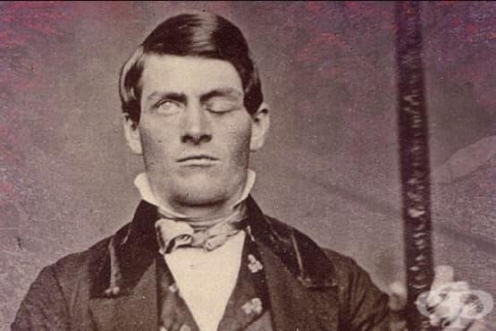 Защо мъж, претърпял черепна травма, страда от промени в личността - изображение