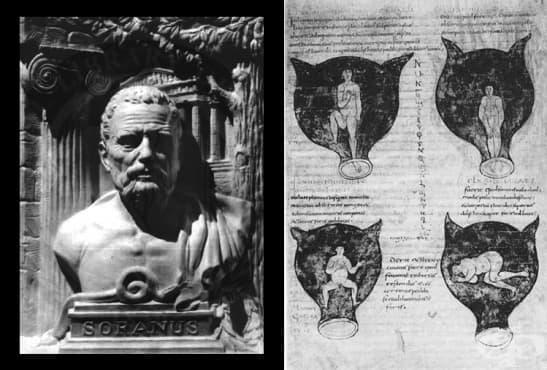 Гинекологията на Соран от Ефес - изображение