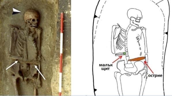 Древен воин замества ампутираната си ръка с острие - изображение