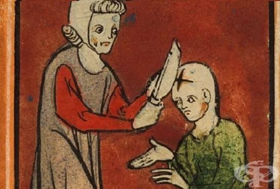Няколко неприятни медицински практики, за които се радваме, че са останали в миналото - изображение