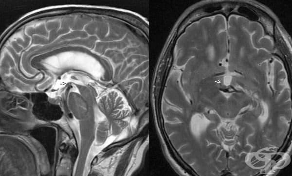 Хирургически интервенции, използвани в борбата срещу болестта на Паркинсон - изображение