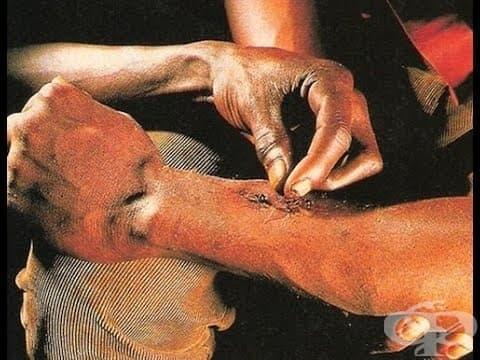 Да зашиеш рана с мравки - традиционна практика при племената от Централна Америка. - изображение