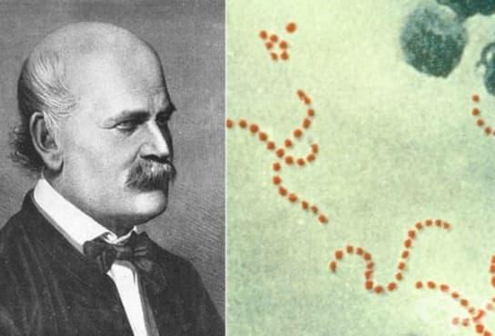 Игнац Земелвайс – унгарският пионер, приложил за пръв път антисептични процедури в медицината  - изображение
