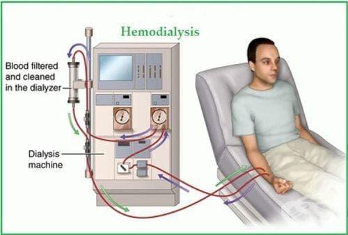 Историческа основа за откритието на хемодиализата - изображение