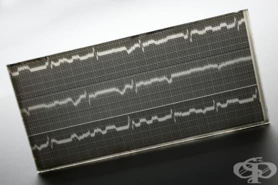История на електрокардиографията - изображение