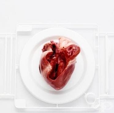 История на първата сърдечна трансплантация - изображение