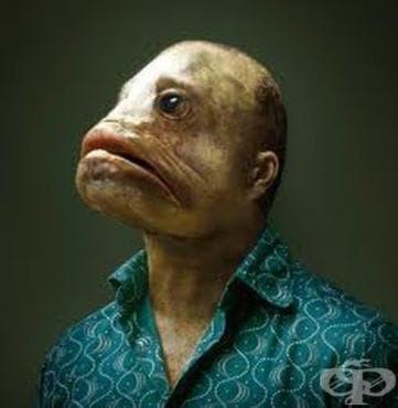 История на триметиламинурията/синдрома на рибната миризма - изображение