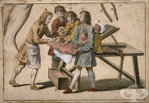 История на литотомията - изображение