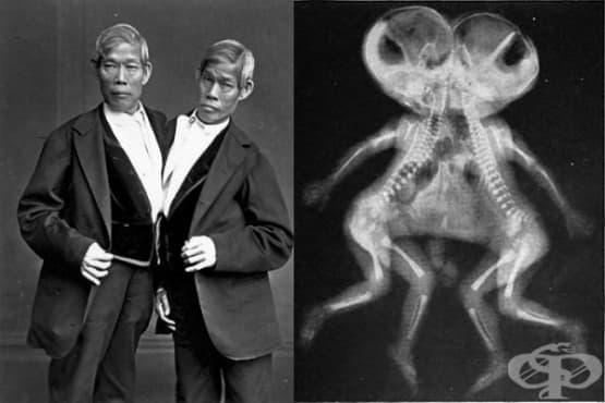 История на сиамските близнаци – 3 000 години назад във времето - изображение