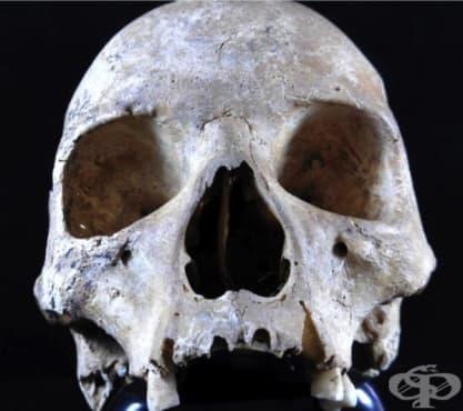 Средновековен случай на проказа, разпространена чрез гризачи - изображение