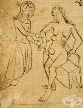 Жените и тяхната лечебна практика с вендузи - изображение