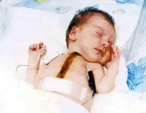 Кардиотрансплантация при деца - изображение