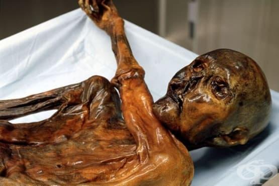 Мистериозната смърт на Ледения човек Йоци и лечебните му татуировки - изображение