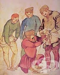 Манипулации по отстраняването на бъбречни камъни от Античността и Средновековието - изображение
