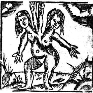 Човешките малформации – необяснимият ужас в акушерството и гинекологията до 18 век, част 2 - изображение