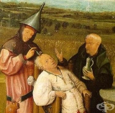 Методи за лечение на пациенти със счупен череп, датиращи от 12 век - изображение