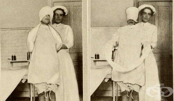 Морфинът и скополаминът срещу болката и травмиращите спомени от тежкото раждане в миналото  - изображение