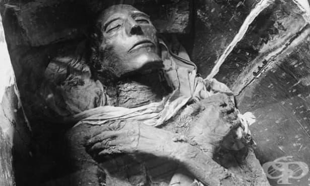 Изследване на египетски мумии показва, че древните хора често страдали от атеросклероза - изображение
