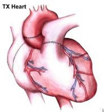 Нов метод, улавящ ранни признаци на отхвърляне на кардиотрансплантите - изображение