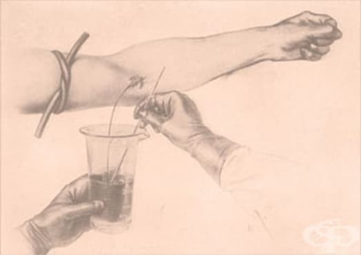 Нововъведения в областта на кръвопреливането до Първата световна война - изображение