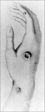 Откритие на ваксинацията от Едуард Дженър - изображение