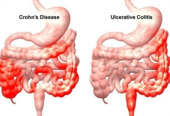 Откриване и дефиниция болестта на Крон – случайност на съдбата от 1932 г. - изображение