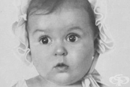 Най-красивото арийско бебе в Нацистка Германия било от еврейско семейство - изображение