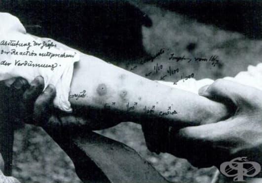 Поява на първия туберкулинов тест - изображение