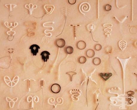 Поява на вътрематочните контрацептиви - изображение