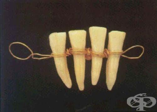 Предпоставки, подпомогнали развитието на стоматологията - изображение