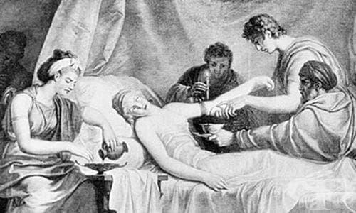 Пример за лечение с кръвопускане, съхранен от историята на медицината - изображение
