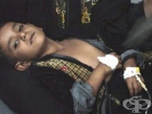 Първа, втора и трета холерни пандемии, станали част от медицинската история на Иран - изображение