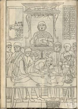 Първата отпечатана илюстрация на модерна анатомична дисекция - изображение