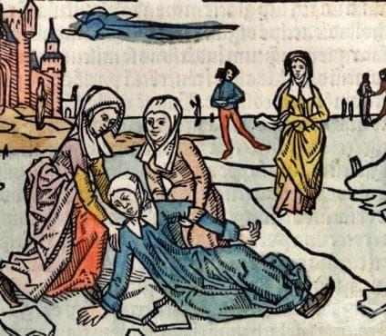 Първи случай на множествена склероза от 14-ти век  - изображение