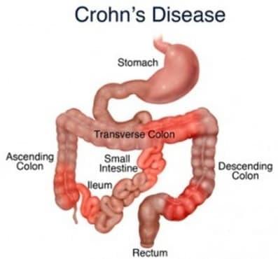 Болест на Крон - разбиране на новото патологично състояние в периода от 1932 до 1956 г. - изображение