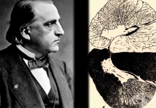 Разграничаване на болестта на Паркинсон от други неврологични нарушения от 19-ти век  - изображение