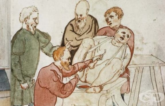 Развитие на литотомията през гръко-римска епоха и средновековието - изображение
