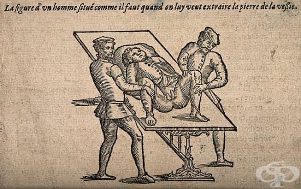 Развитие на литотомията през XVII - XIX век - изображение