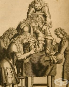 Развитие на литотомията през Ренесанса - изображение
