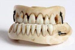 Времева линия, описваща развитието на стоматологията през 20 век - изображение
